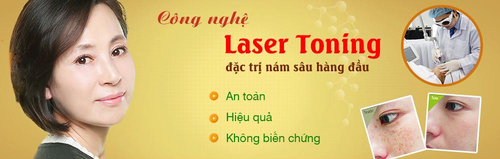 Trị nám da Laser Toning
