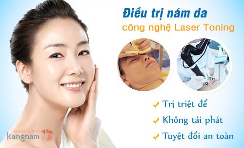 Cách điều trị nám da bằng tia Laser Toning