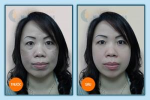 Tư vấn giúp tôi cách trị tàn nhang trên mặt tận gốc - không tái phát? 4