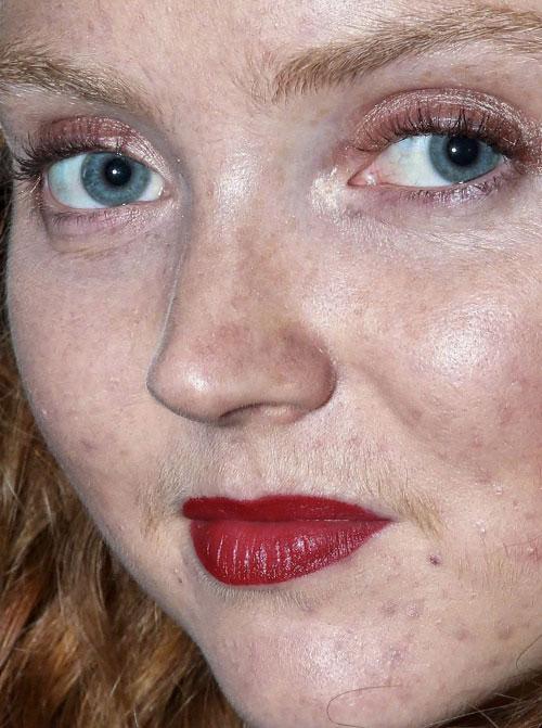 """""""Điểm mặt"""" sao Hollywood  """"lộ diện"""" khuôn mặt đầy vết thâm nám 3"""