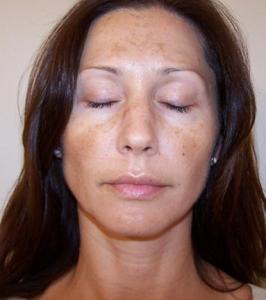 Sau trị nám mảng bằng công nghệ Peeling da có bị bắt nắng không?