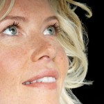 Cách chăm sóc da mặt sau điều trị nám bằng Peeling Hiệu quả
