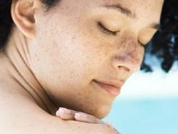 Laser Toning trị nám da ở mặt có gây bỏng rát da?