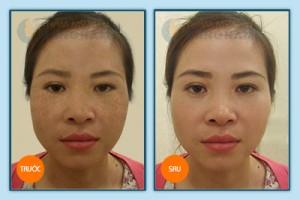 Các phương pháp cho làn da bị nám mảng3