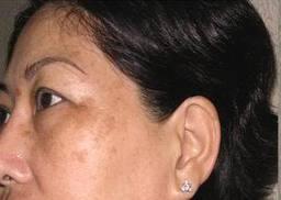 Nám da bị tái phát có thể chữa khỏi hẳn được không?