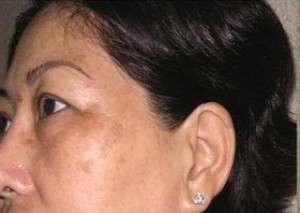 Giải pháp chữa nám da sau sinh dứt điểm, hiệu quả cao