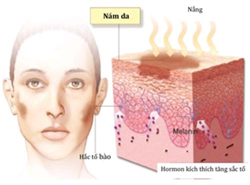 Cách chữa nám da mặt22