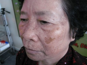 Cách phân biệt giữa nám da và tàn nhang
