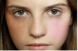 Nám da và những vấn đề bạn không nên bỏ qua