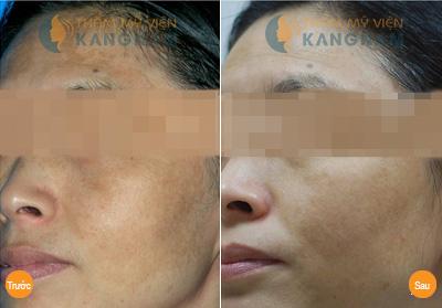 Bí kíp trị nám da mặt của 4 diva hàng đầu làng nhạc Việt