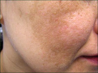 Bị nám da do lạm dụng mỹ phẩm có chữa được không?1