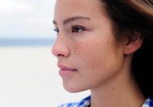 Cách chữa nám da bằng phương pháp dân gian, bạn đã thử?