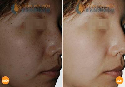 Trị nám da mặt có cần phải gây mê không?2