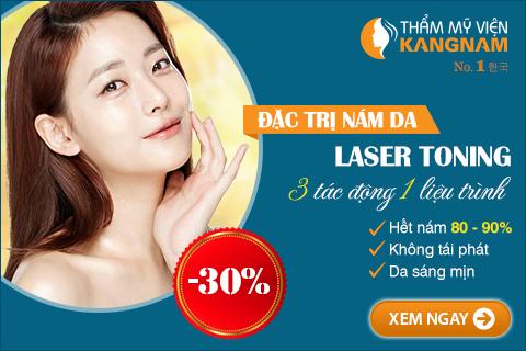 Giảm 30% – Đặc trị nám da Laser Toning, 3 tác động 1 liệu trình