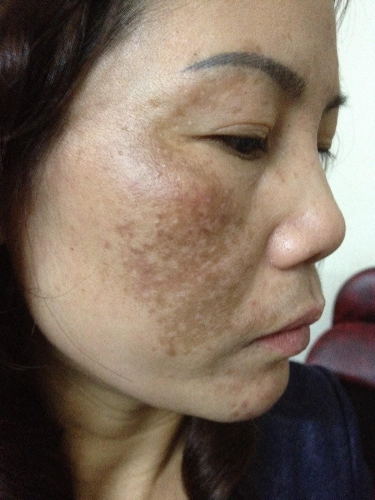 Trị nám da mặt có cần phải gây mê không?