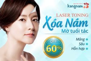 Laser Toning Xóa sạch mọi loại Nám da – Mờ tuổi tác SALE OFF 60%