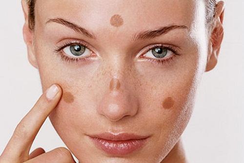 Nguyên nhân gây ra nám và đốm nâu trên mặt là gì