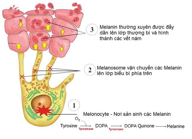 Nám da dễ quay lại vì cơ chế hình thành từ sâu trong da