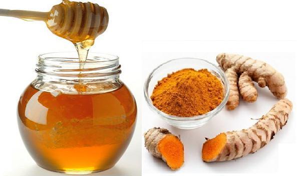 Trị nám quanh miệng hiệu quả bằng mặt nạ mật ong và bột nghệ
