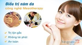 Trị nám mảng bằng công nghệ Mesotherapy hiện đại và tốt nhất 2017
