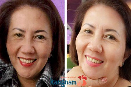 Hình ảnh trước và sau khi trị nám