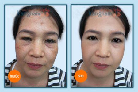 Trị nám da bằng công nghệ thẩm mỹ ở Kangnam hiệu quả nhanh