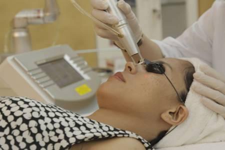 Cách trị nám da ở cổ bằng Laser Toning