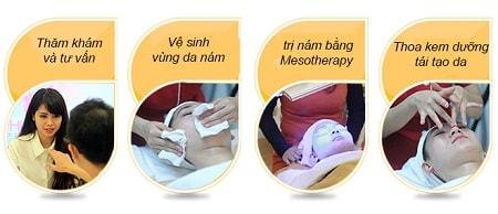 Trị nám da bằng Mesotherapy 4