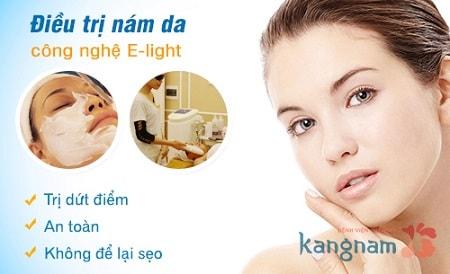 Trị nám da bằng công nghệ ánh sáng E - light 1