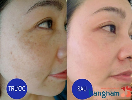 hình ảnh trước và sau khi trị nám bằng peeling