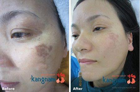 kết quả sau khi trị nám mảng bằng peeling