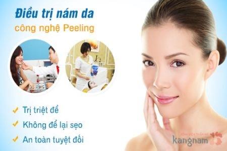 trị nám da bằng Peeling 1