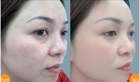 Bệnh nám da mặt tại sao khó trị dứt điểm?  4