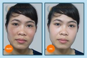 Các phương pháp cho làn da bị nám mảng5