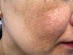 Các phương pháp cho làn da bị nám mảng2