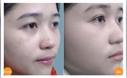 Cách chữa nám da bằng phương pháp dân gian, bạn đã thử?7
