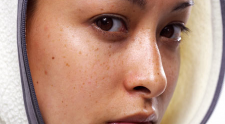 Da mặt mỏng, trị nám da bằng công nghệ cao có an toàn không?1