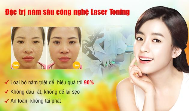 Da mặt mỏng, trị nám da bằng công nghệ cao có an toàn không?2