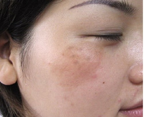 Bệnh nám da mặt tại sao khó trị dứt điểm? 1