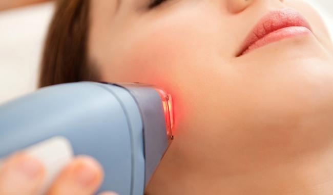 Trị nám da bằng tia laser có an toàn không? 3