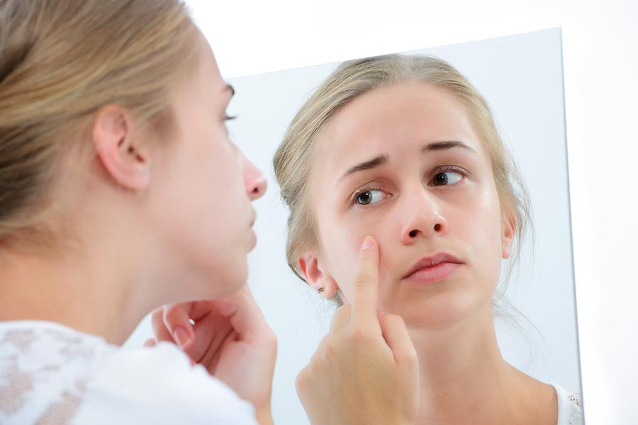 Nám da rất dễ tái phát nếu không điều trị triệt để