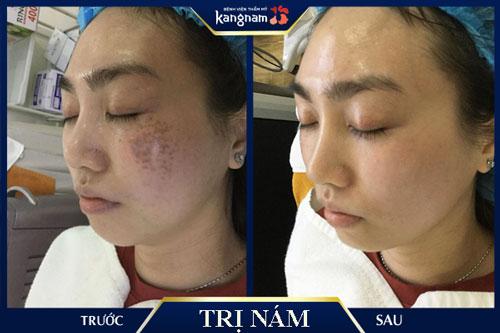 Kết quả điều trị nám và đốm nâu trên mặt tại Kangnam