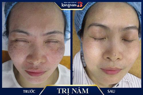 Điều trị nám và đốm nâu bằng Laser Toning