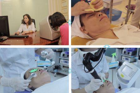 Quy trình điều trị nám da bằng Laser Toning
