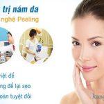 Trị nám da bằng Peeling an toàn và hiệu quả nhất 2017